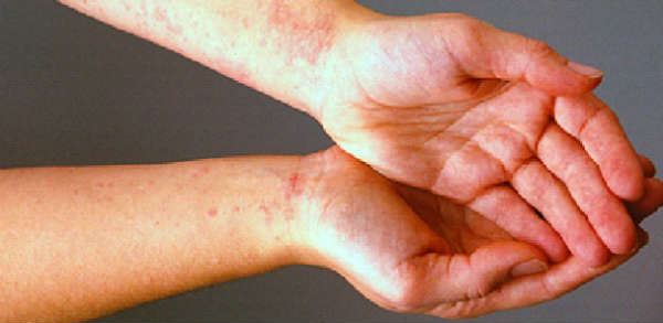 allergia al nichel alle mani
