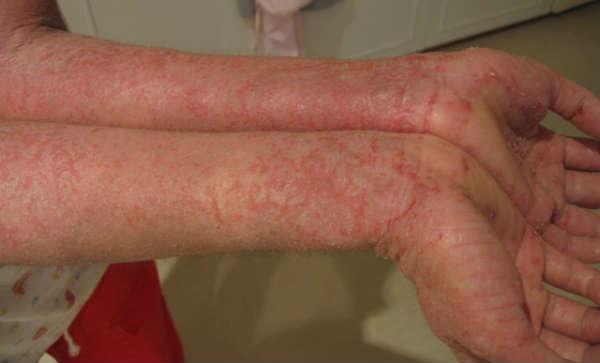 eczema causato da allergia al nichel